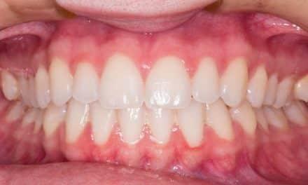 Ursachen und Hilfe bei Zahnfleischrückgang (Paradontalerkrankungen)