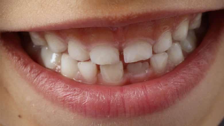 Karies bei Kindern – Was tun? 5 Tipps zum Vermeiden von Zahnkaries bei Kindern